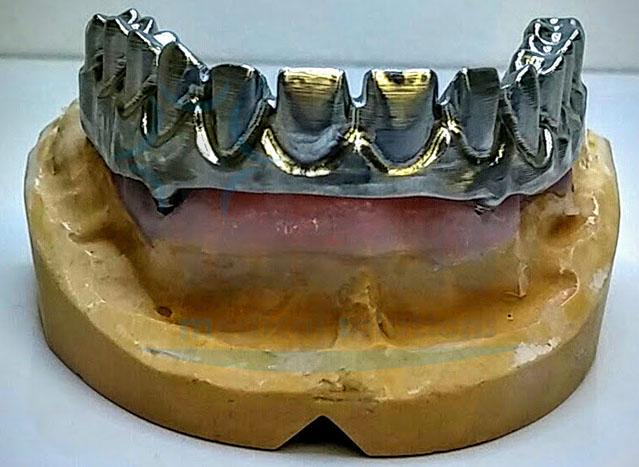 Estructura sobre muñones de titanio