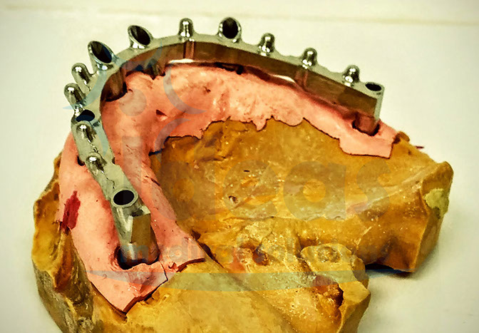 Híbrida sobre implantes conexión interna standard y tipo cono morse