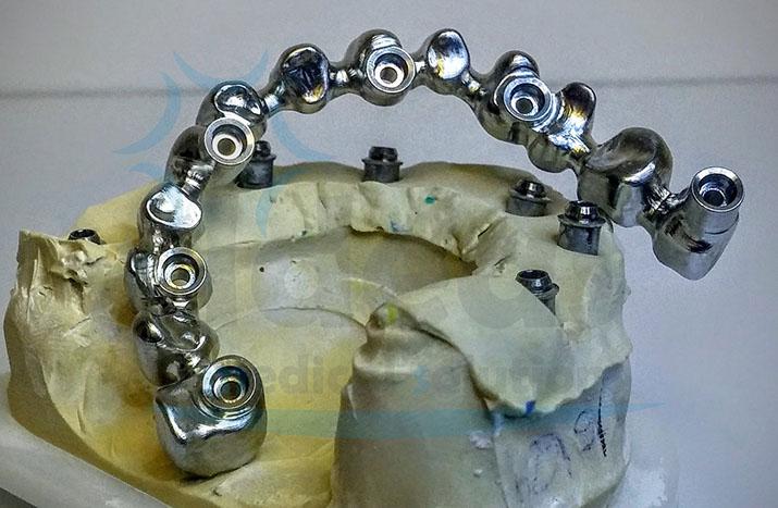 Estructura sobre implantes Klockner Essential