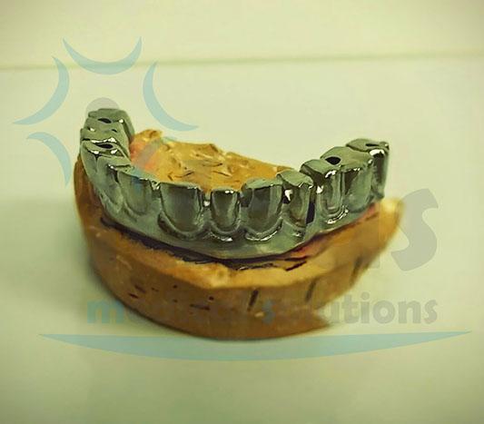 Estructura atornillada sobre implantes conexión interna standard